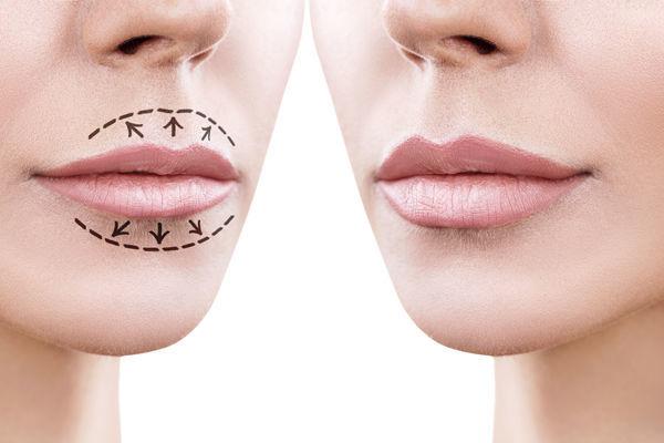 Рейтинг лучших способов увеличить губы: какой самый безопасный? - Я Покупаю